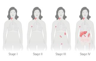 cancer hodgkin stadiu 4)